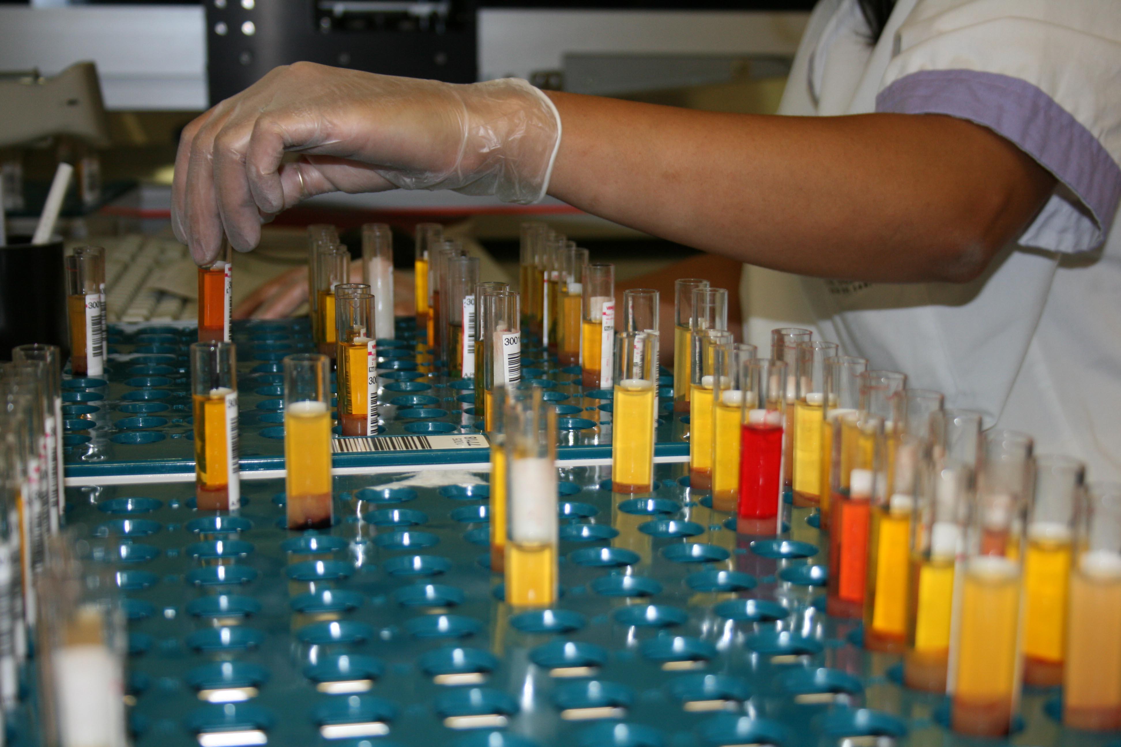 12 proyectos han sido promovidos por personal del Hospital, 29 de promoción externa y 17 académicos.
