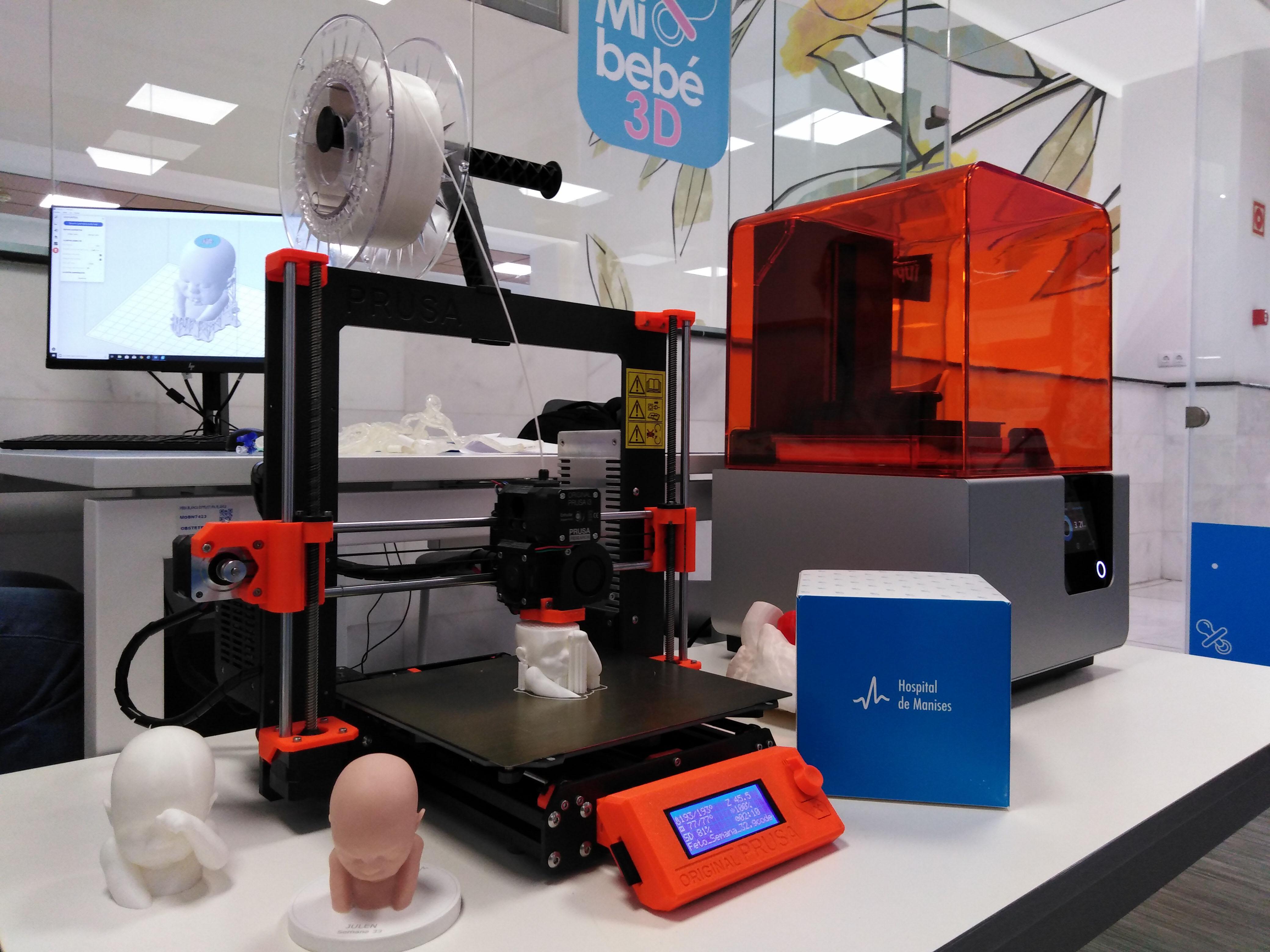 Un momento de impresión de 3D de uno de los bebés.