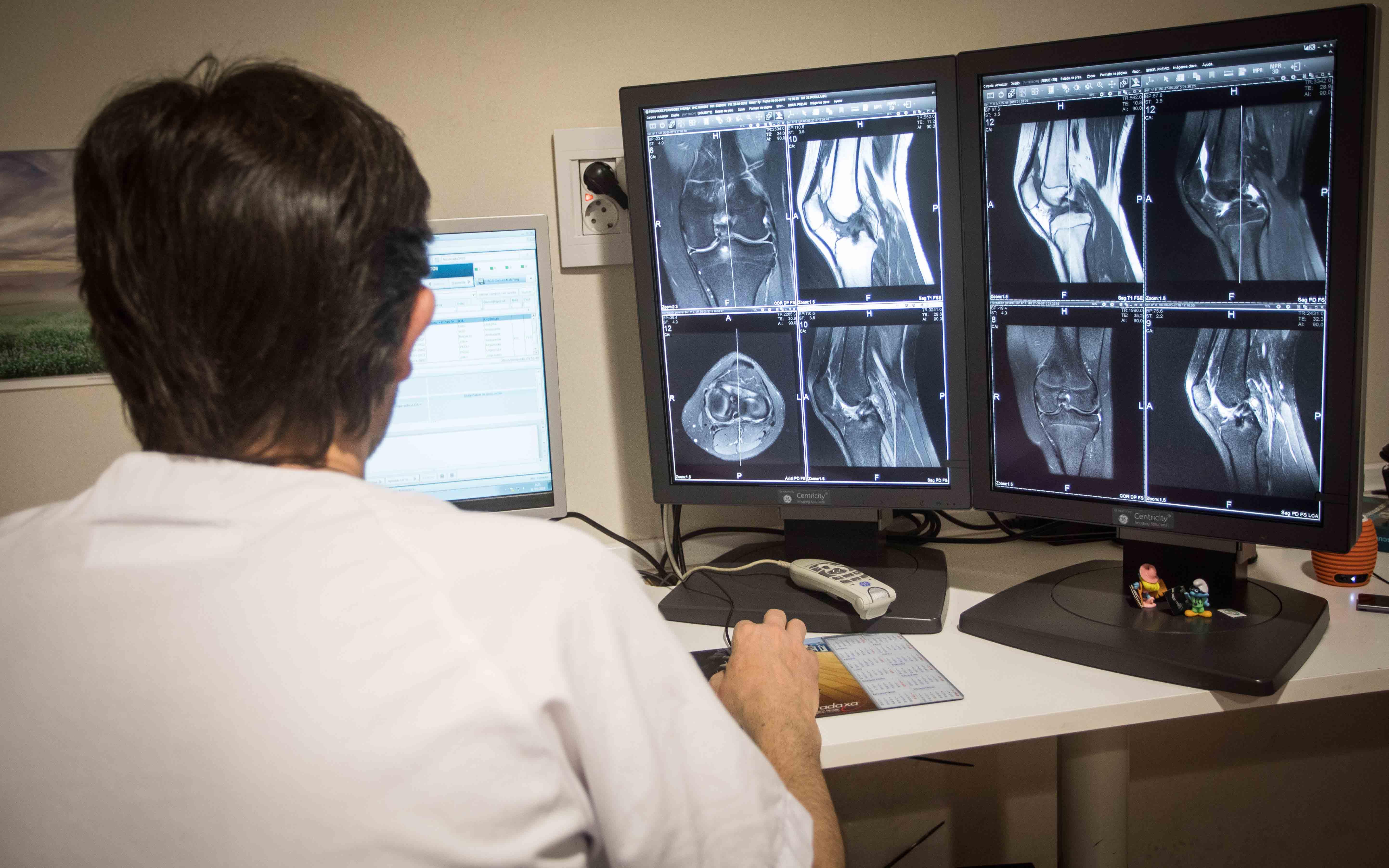 El Hospital de Manises ha realizado 536 cirugías de prótesis de rodilla en 2018, principalmente en pacientes mayores de 55 años.